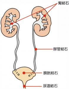 尿路結石の図