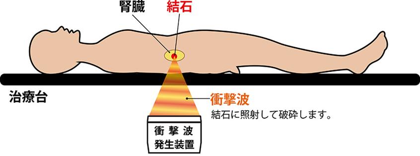 体外衝撃波結石破砕治療(ESWL)の図